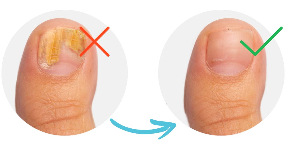 Before and After - Toenails