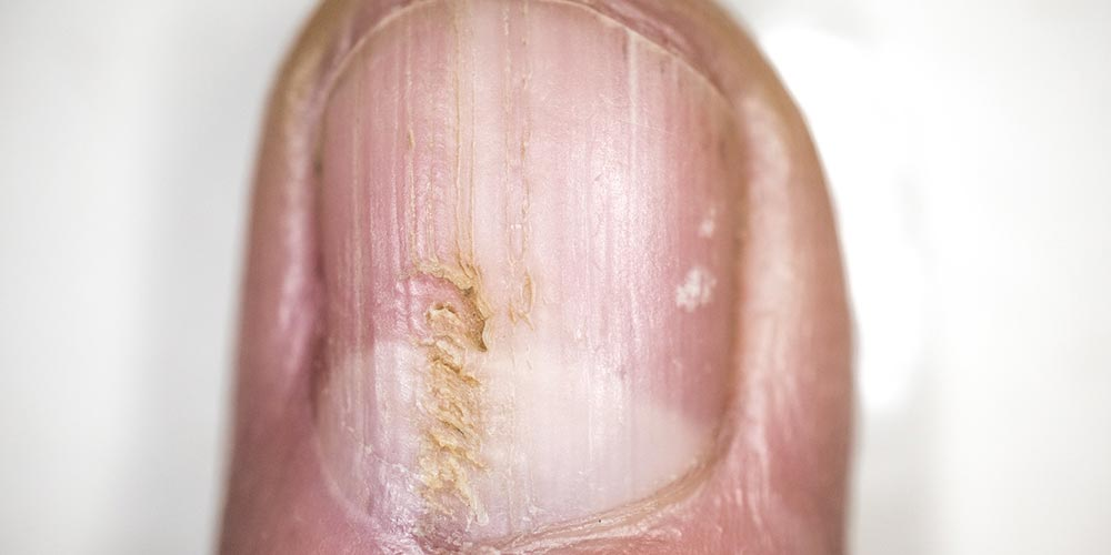 Infected fingernail